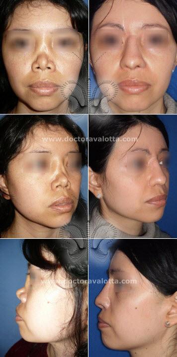 reconstruccion-nasal-2